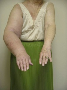 Secondary Lymphoedema following breast cancer